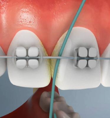 How To Floss Your Teeth Easy Step By Step Guide And Video